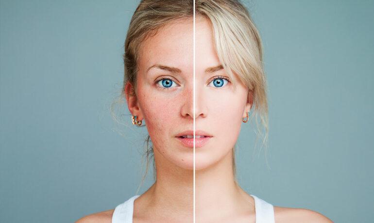 Чувствительная кожа: характеристики, причины и уход