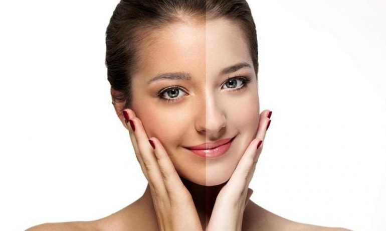 12 способов осветлить лицо