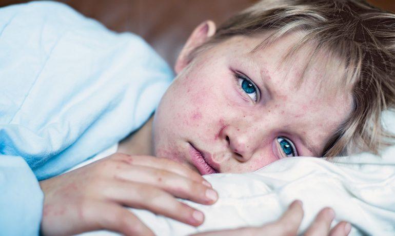 Корь. Причины, симптомы и лечение