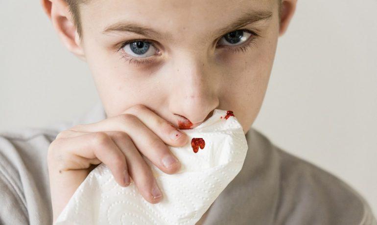 Природные средства от кровотечения из носа