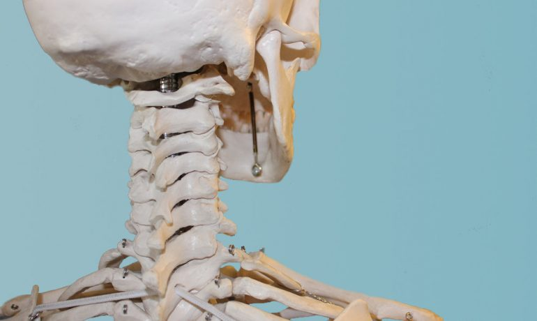 Причины и последствия нестабильности шейного состава