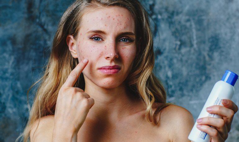 Симптомы и лечение косметической аллергии