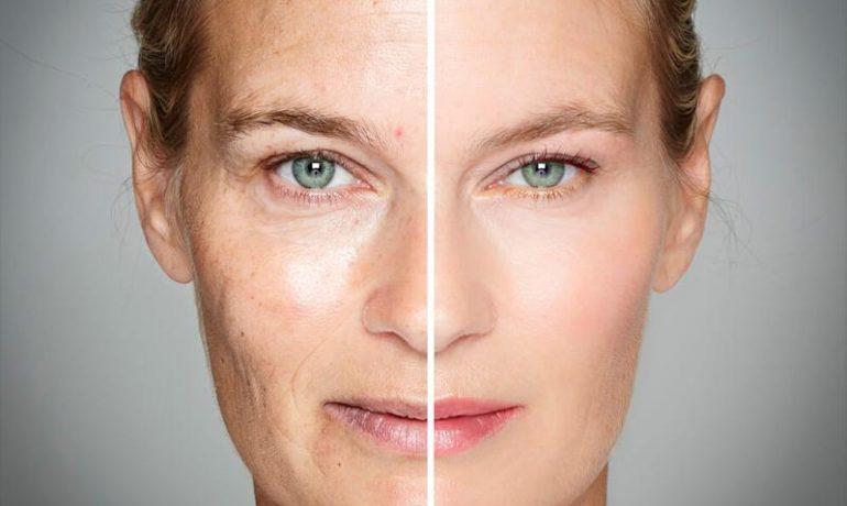 Фотостарение кожи: профилактика фотостарения