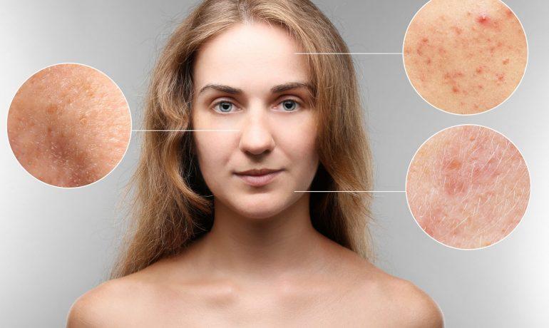 Сыпь. Когда внешний вид кожи может стать тревожным