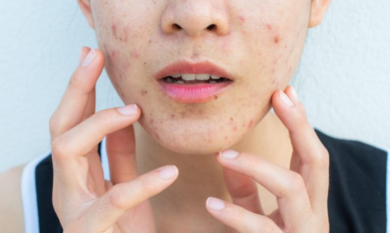 Угревая кожа. Как бороться с проблемами